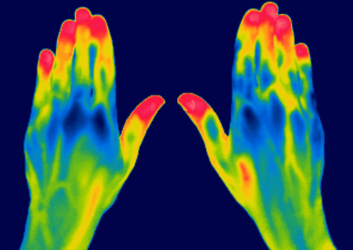 Using Thermal Camera On Hands